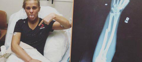 UFC vechtster Paige VanZant met haar gebroken arm