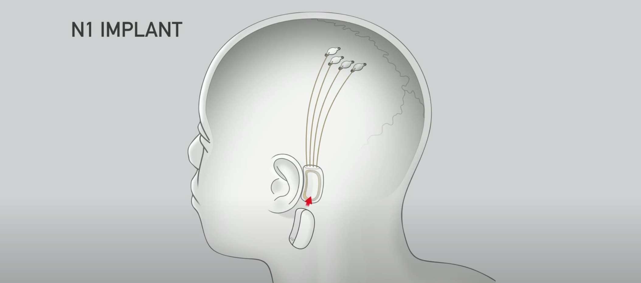 neuralink, elon musk, muziek streamen, chip, brein